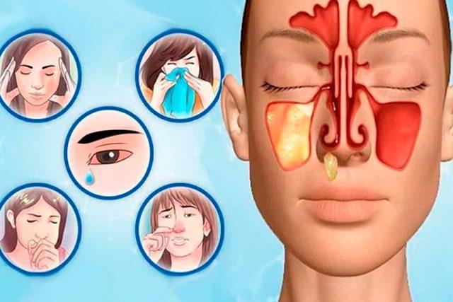 Ксилен капли в нос: инструкция по применению, цена, отзывы, аналоги