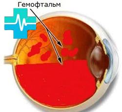 Кровоизлияние в глаз: причины, лечение. Что делать и как лечить кровоизлияние в глазу
