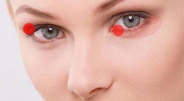 Блефарит: симптомы и лечение, фото, как лечить блефарит век у взрослых