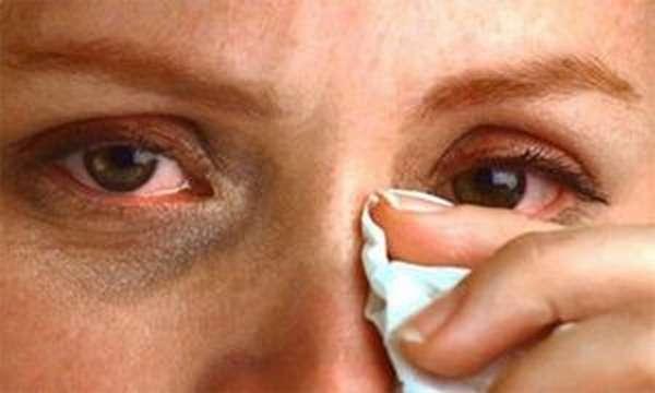 Ощущение песка в глазах: причины. Что делать, если в глаза как будто песок насыпали