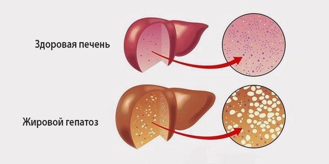 Жировой гепатоз печени: симптомы, лечение, что такое жировой гепатоз печени и чем его лечить