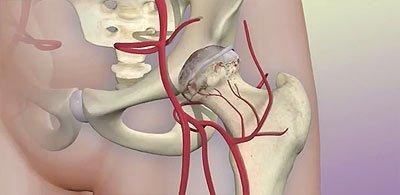 Боль в тазобедренном суставе: причины, лечение