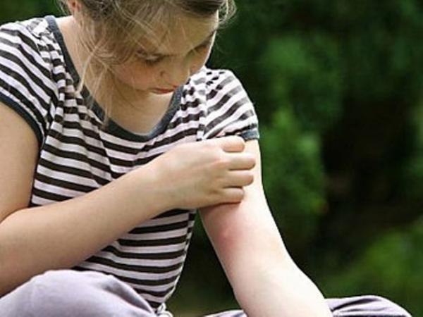 Укусы комаров: чем снять зуд в домашних условиях?