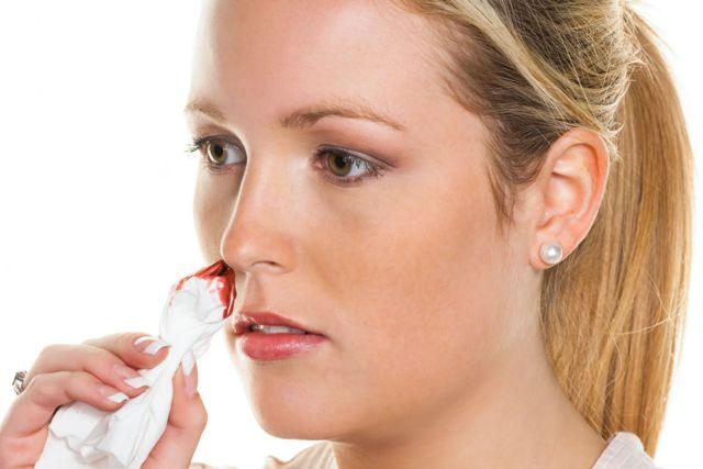 Носовое кровотечение у взрослых: причины частых кровотечений из носа из одной ноздри. Как остановить носовое кровотечение