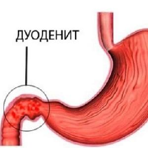 Дуоденит желудка - что это такое? Признаки и лечение дуоденита