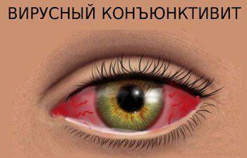Виролекс мазь глазная: инструкция по применению, показания, цена, отзывы, аналоги