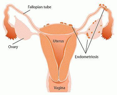 Боль в паху у женщин справа, слева: причины. Почему болит в правом, левом паху