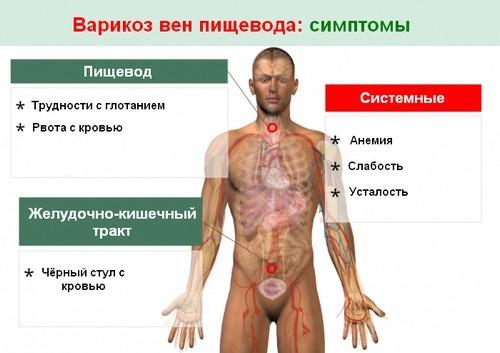 Варикозное расширение вен пищевода, лечение варикоза пищевода