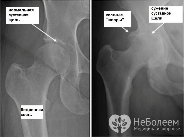 Артроз тазобедренного сустава: симптомы и лечение, профилактика