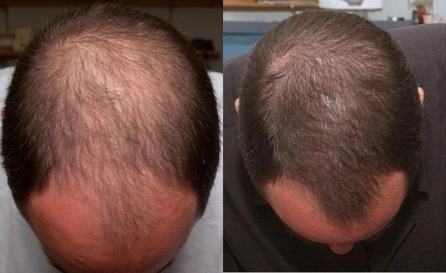 Миноксидил - инструкция по применению для роста волос, цена, отзывы