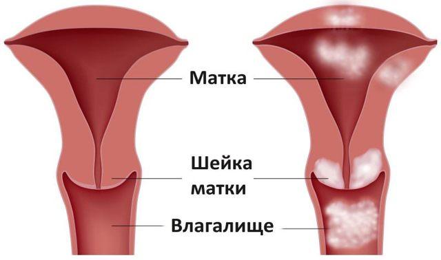Стадии рака шейки матки, прогноз рака шейки матки 1,2,3 и 4 стадии