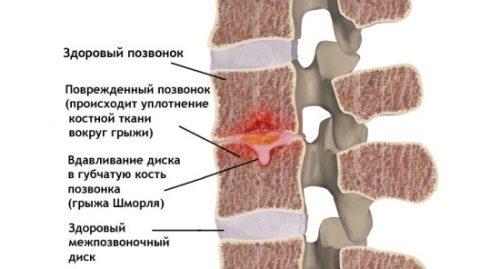 Грыжа Шморля: что это такое и как лечить, лечение грыжи Шморля поясничного отдела позвоночника