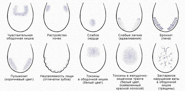 Трещины на языке: причины и лечение. Почему язык в трещинах