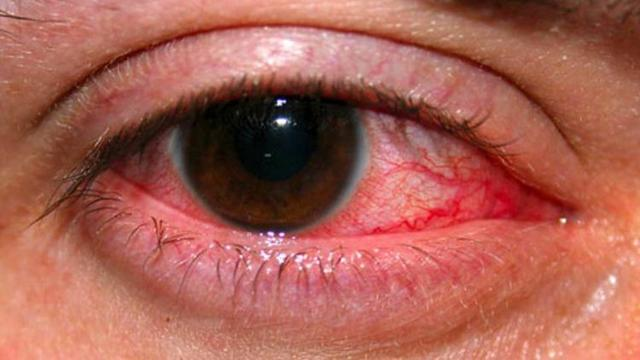 Макситрол глазные капли: инструкция по применению, цена, отзывы, аналоги