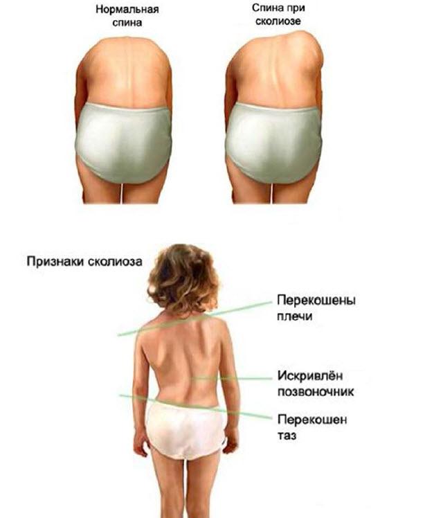 Боль в почках, симптомы и лечение боли в спине в области почек