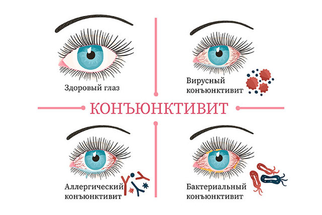 Полудан: инструкция по применению, цена, отзывы, аналоги глазных капель Полудан