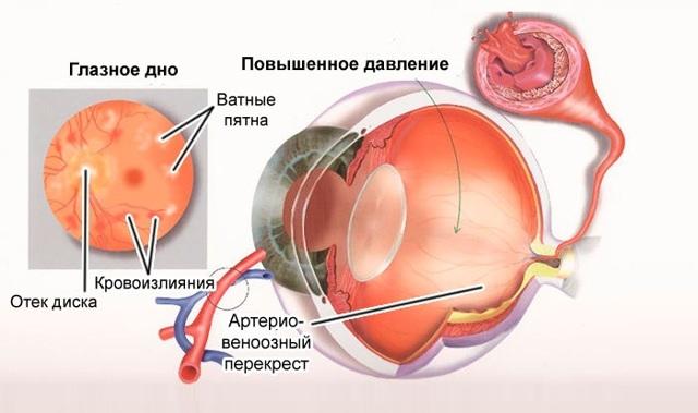 Внутриглазное давление: норма, симптомы повышенного и пониженного внутриглазного давления
