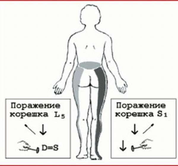 Грыжа диска l5-s1: что это такое, лечение, операция