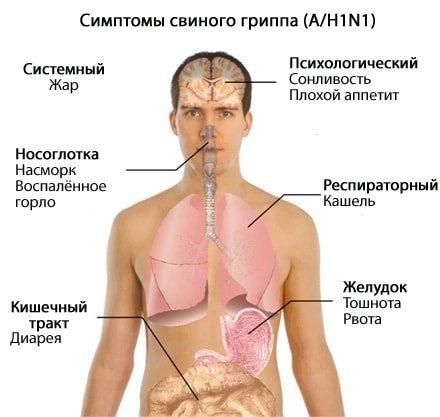 Свиной грипп: симптомы у людей. Свиной грипп в России 2016: симптомы, лечение