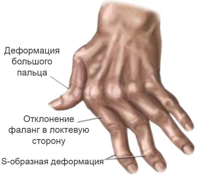 Артрит: симптомы, лечение, причины возникновения, профилактика