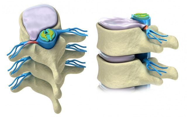 Протрузия дисков поясничного отдела позвоночника: что это такое, как лечить, симптомы и лечение