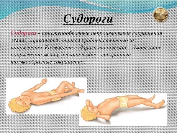 Детский сироп Нурофен: инструкция по применению, цена, отзывы, аналоги