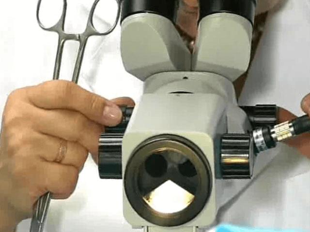 Кольпоскопия шейки матки - что это за процедура в гинекологии, как делают, для чего назначают