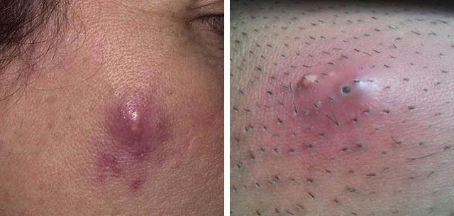 Пиодермия: симптомы, лечение, как начинается пиодермия (фото) и как ее лечить