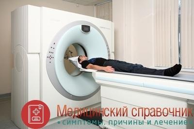 Лимфаденит: симптомы, фото, лечение лимфаденита