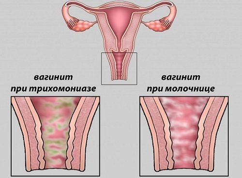Белые выделения без запаха и зуда у женщин: причины, лечение