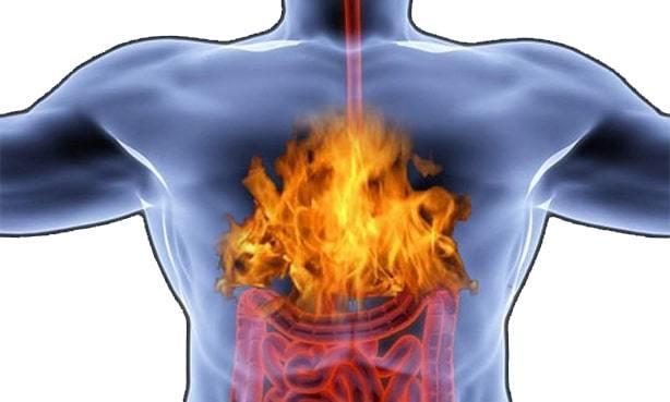 Жжение в груди, причины чувства жжения в области левой (правой) груди