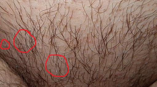 5 причин, по которым рано седеют волосы на лобке