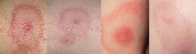 Клещевой боррелиоз (болезнь Лайма): симптомы, фото, диагностика, лечение