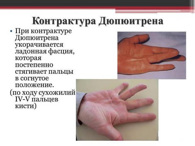 Контрактура Дюпюитрена: лечение без операции, причины, симптомы