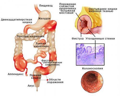 Боль в районе пупка: причины острой, резкой боли в области пупка у женщин, мужчин