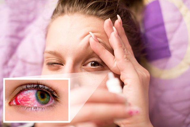 Сигницеф глазные капли: инструкция по применению, цена, отзывы, аналоги