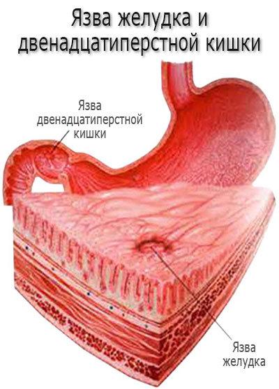 Язва желудка или двенадцатиперстной кишки лечение лекарственными препаратами