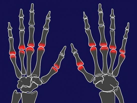Хрустят суставы по всему телу: причины, лечение хруста в суставах