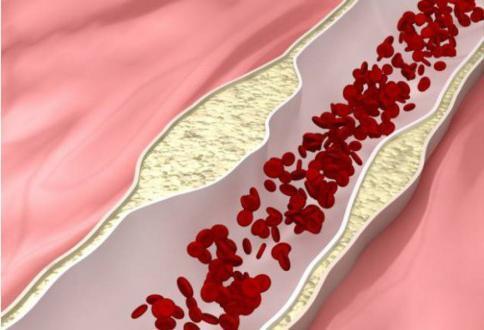 Капельница Цитофлавин внутривенно: инструкция по применению, для чего применяется, цена ампул, отзывы, аналоги таблеток Цитофлавин