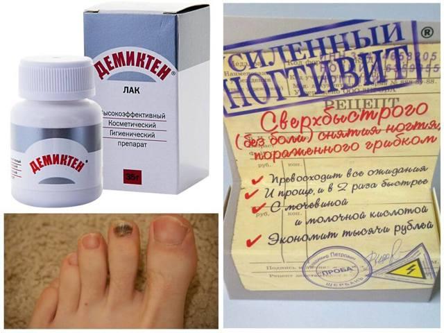 Лак от грибка ногтей Лоцерил - отзывы, цена, инструкция по применению, аналоги