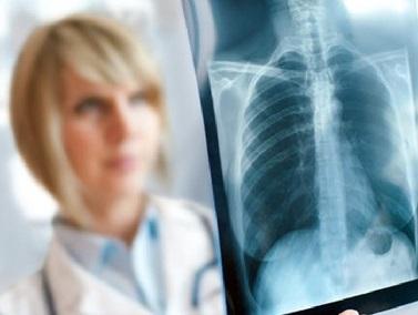 Туберкулез у взрослых: симптомы, первые признаки, лечение туберкулеза у взрослых