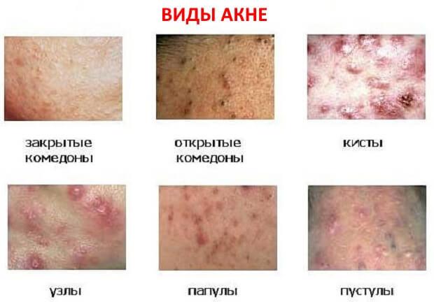 Акне: причины и лечение акне на лице