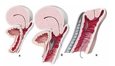 Опущение матки: симптомы и лечение, операция при опущении матки