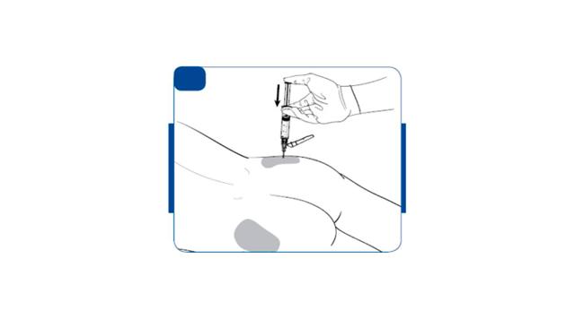 Вивитрол: инструкция по применению, цена, аналоги, отзывы пациентов, алкоголиков о Вивитроле, форум
