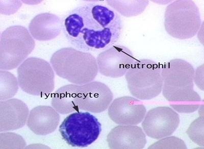 Нейтрофилы понижены, а лимфоциты повышены у взрослого: о чем это говорит, причины