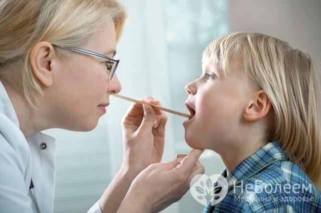 Фарингит: симптомы и лечение у взрослых, фото, как лечить хронический фарингит у взрослых