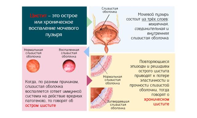Цистит у женщин: симптомы и лечение, препараты. Как лечить цистит у женщин