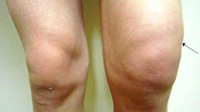 Артроз коленного сустава: симптомы, лечение, профилактика
