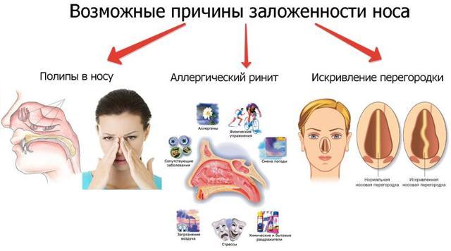 Заложен нос, соплей нет: причины, лечение заложенности носа без насморка