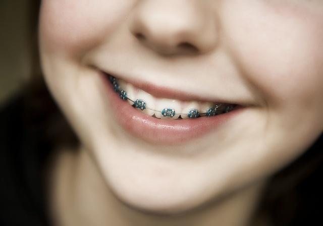 Металлический привкус во рту, причины металлического вкуса во рту у женщин и мужчин